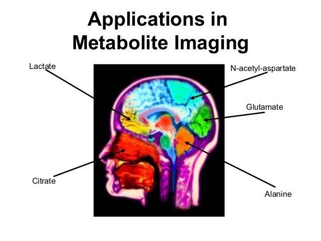 Applications in Metabolite Imaging N-acetyl-aspartateLactate Glutamate Citrate Alanine