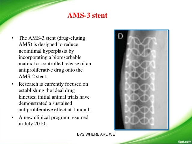 Poly (Anhydride Ester) Salicylic Acid: The IDEAL Stent both antiinflammatory and antiproliferative properties.