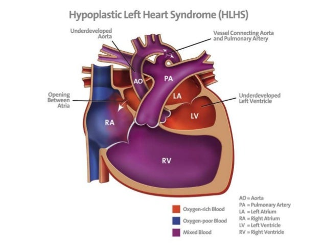 Update On Outcomes Of Neonatal Heart Disease