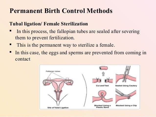 Best option for permanent birth control