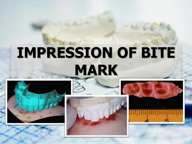 IMPRESSION OF BITE MARK