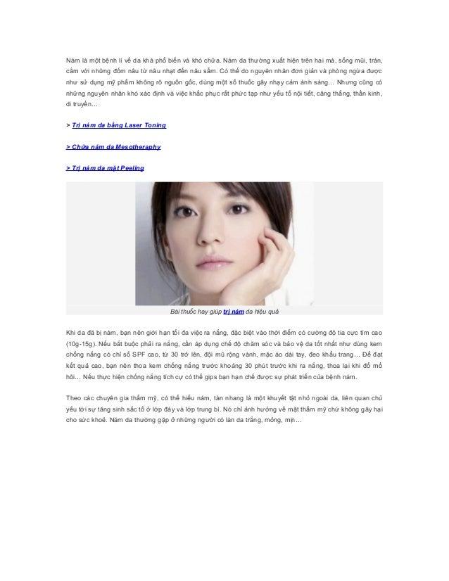 Nám là một bệnh lí về da khá phổ biến và khó chữa. Nám da thường xuất hiện trên hai má, sống mũi, trán,cằm với những đốm n...