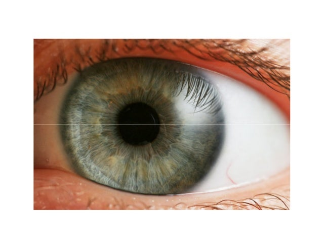 what are black spots in your vision