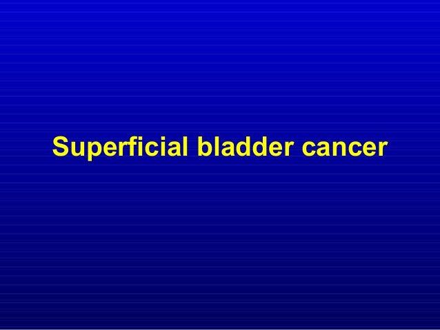 Goals of Treatment • Eradicating existing disease • Preventing tumor recurrence • Preventing tumor progression