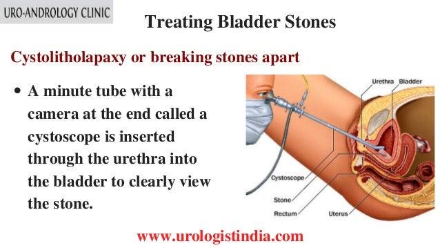 Bladder Stone Treatment In Tamil Nadu Urologist In India