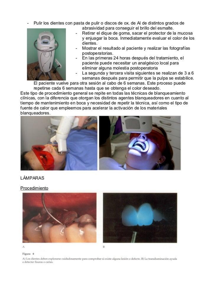 -   Pulir los dientes con pasta de pulir o discos de ox. de Al de distintos grados de                                  abr...