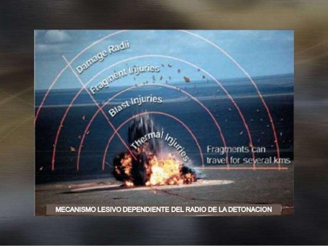 Lesiones Por Explosión Blast