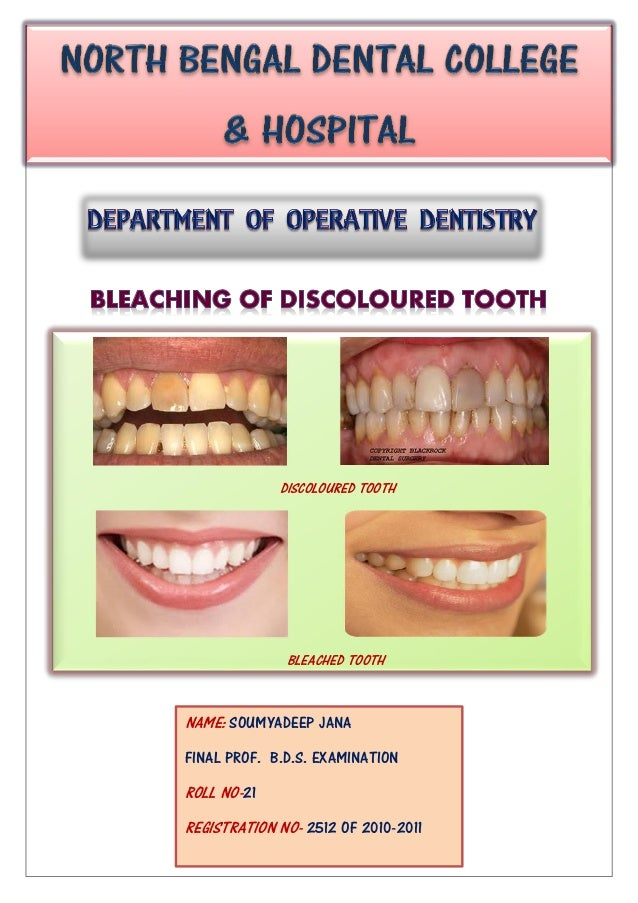 DISCOLOURED TOOTH BLEACHED TOOTH NAME: SOUMYADEEP JANA FINAL PROF. B.D.S. EXAMINATION ROLL NO-21 REGISTRATION NO- 2512 OF ...