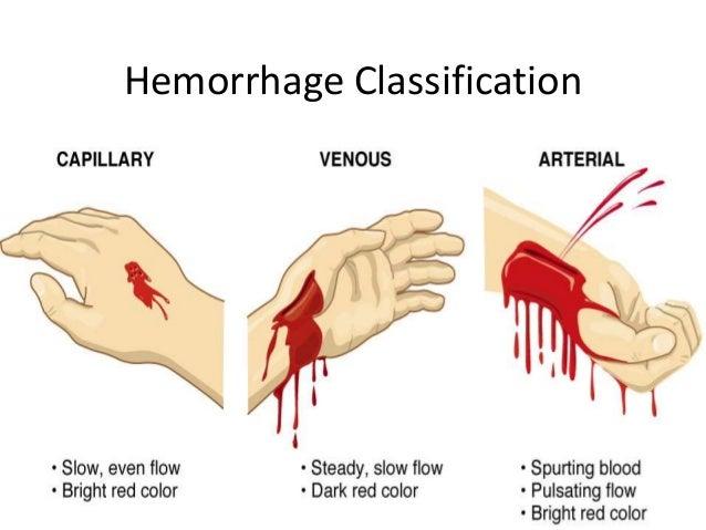 Vitreous Haemorrhage  Health  Patient