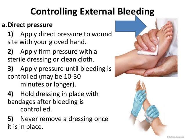 Image result for external bleeding