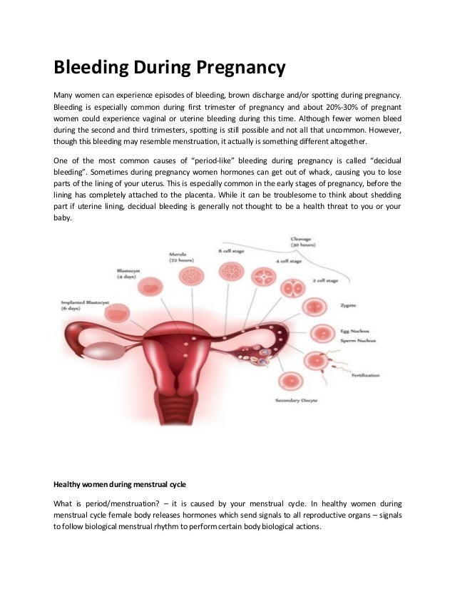 Bleeding during pregnancy Brown Discharge