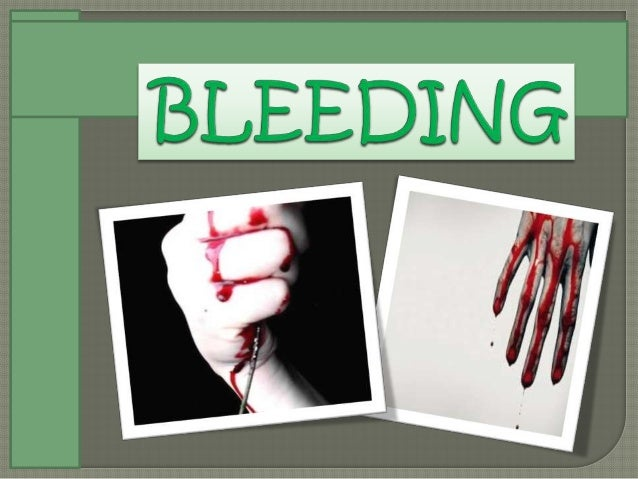 Let's watch this video first. How to Treat a Bleeding Arm Wound.mp4