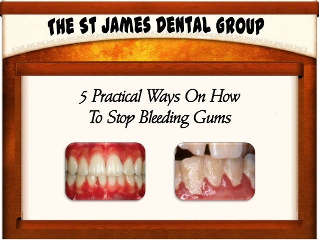 5 Practical Ways On How To Stop Bleeding Gums