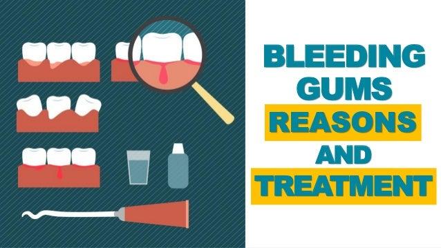 Bleeding Gums - Reasons and Treatment