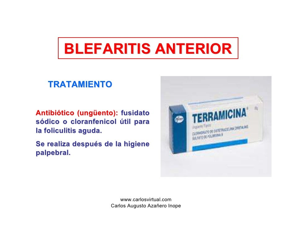 Blepharitis escamosa tratamiento pdf files