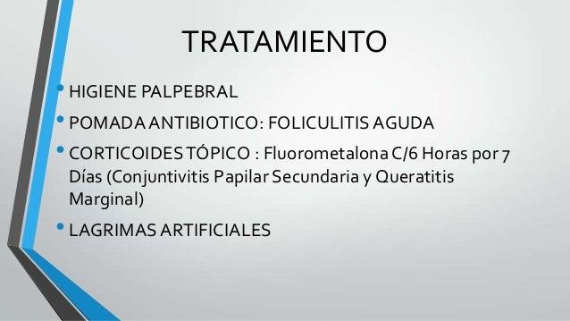 Nombres de antibióticos para blefaritis