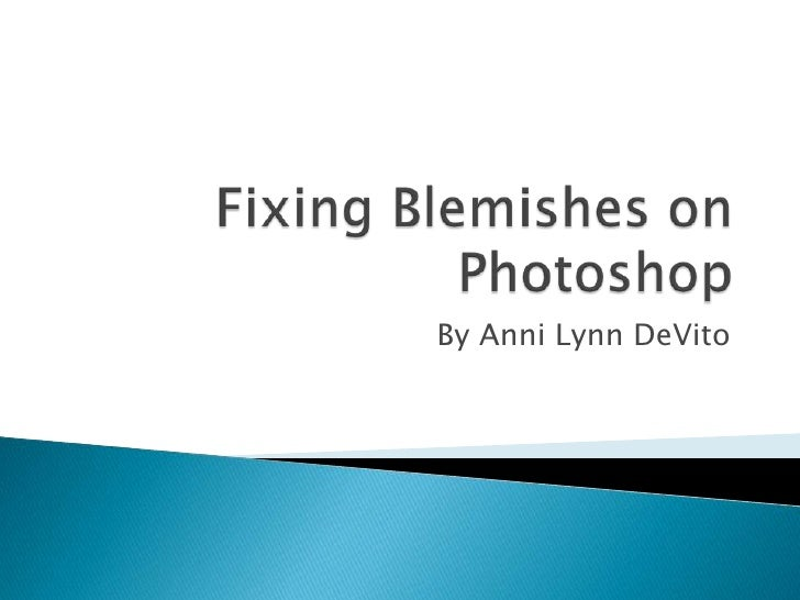 Fixing Blemishes on Photoshop<br />By Anni Lynn DeVito<br />