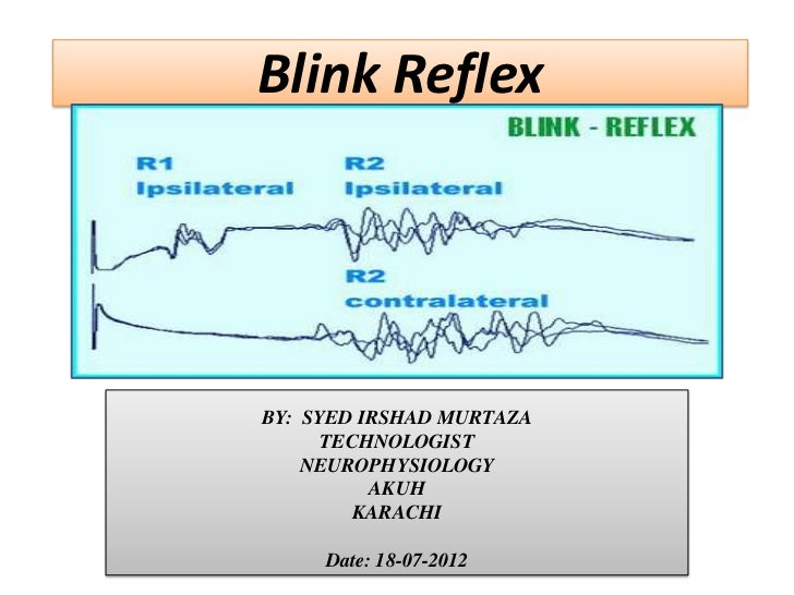 example of ipsilateral reflex