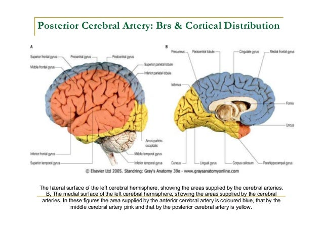 Neuroanatomy Stroke Model: Middle Cerebral Artery
