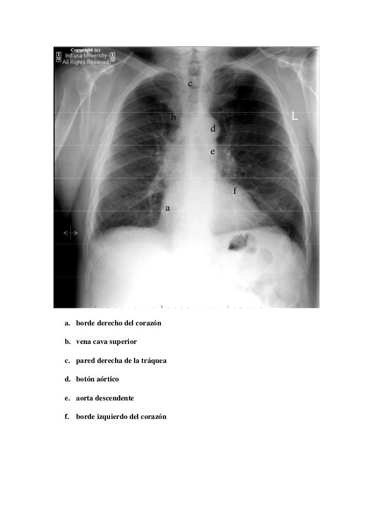 Radiologa Torcica