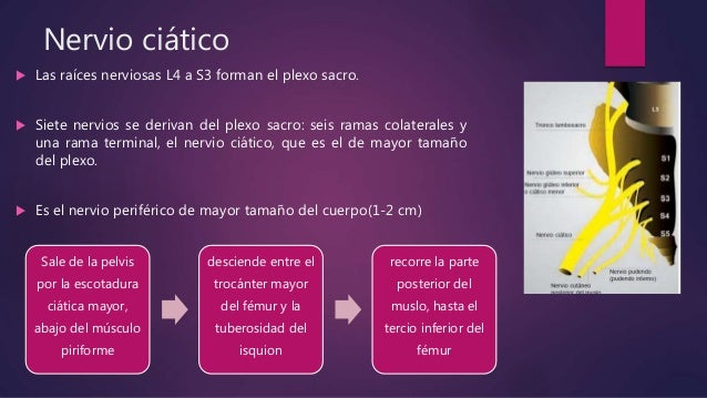 Bloqueo n ciatico Slide 3