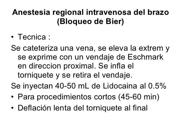 Anestesia regional intravenosa del brazo (Bloqueo de Bier) <ul><li>Tecnica :  </li></ul><ul><li>Se cateteriza una vena, se...