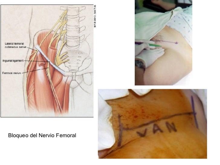 Bloqueo del Nervio Femoral