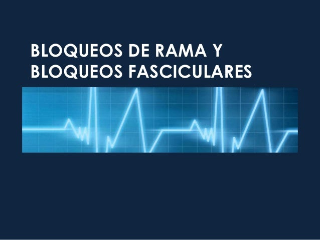 BLOQUEOS DE RAMA Y BLOQUEOS FASCICULARES