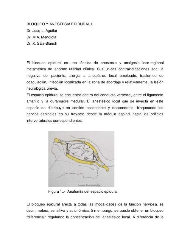 BLOQUEO Y ANESTESIA EPIDURAL IDr. Jose L. AguilarDr. M.A. MendiolaDr. X. Sala-BlanchEl bloqueo epidural es una técnica de ...