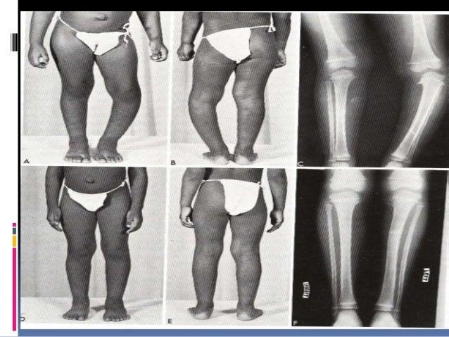 BLOUNTS DISEASE  Erlacher first description of tibia vara and internal tibial torsion (1922)  Blount (1937) described ti...