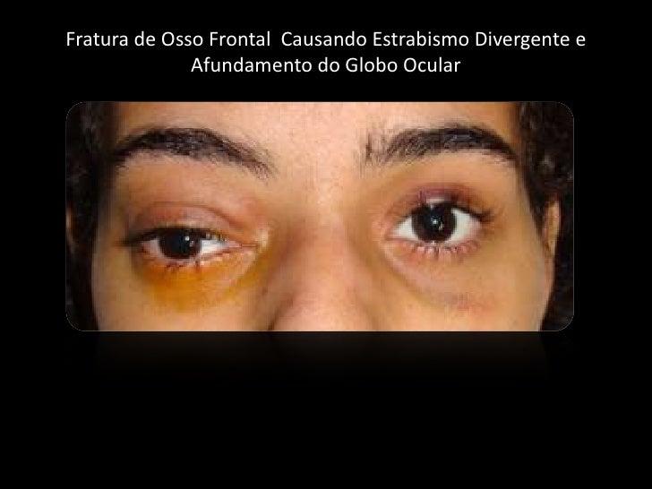 Fratura de Osso Frontal  CausandoEstrabismoDivergente e Afundamento do Globo Ocular<br />