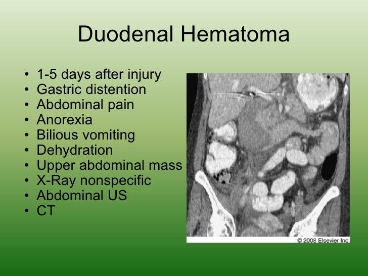 Duodenal Hematoma <ul><ul><li>1-5 days after injury </li></ul></ul><ul><ul><li>Gastric distention </li></ul></ul><ul><ul><...