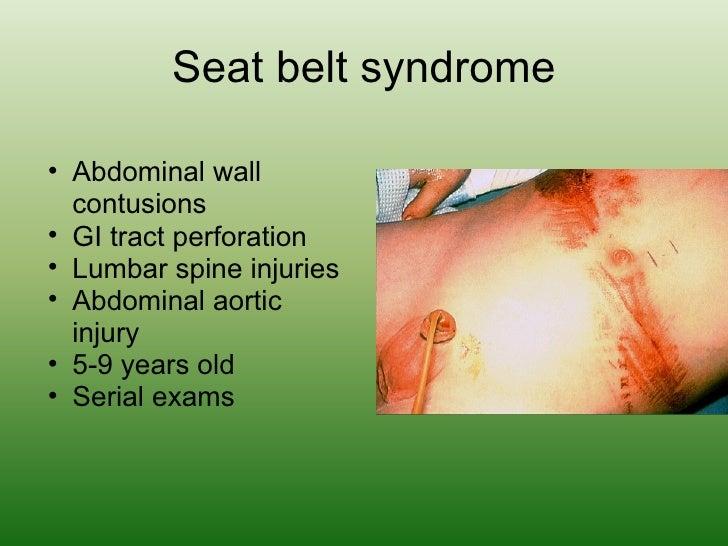 Seat belt syndrome <ul><ul><li>Abdominal wall contusions </li></ul></ul><ul><ul><li>GI tract perforation </li></ul></ul><u...