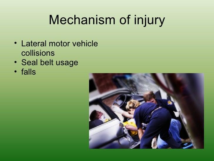 Mechanism of injury <ul><ul><li>Lateral motor vehicle collisions </li></ul></ul><ul><ul><li>Seal belt usage </li></ul></ul...
