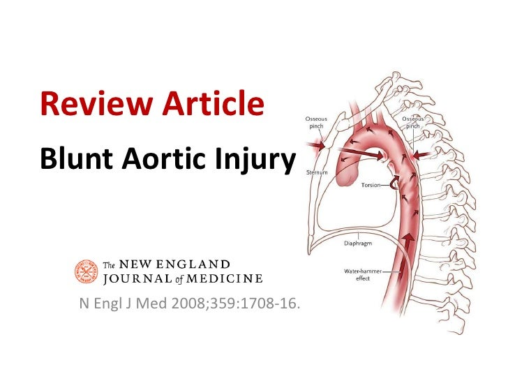 Blunt Aortic Injury