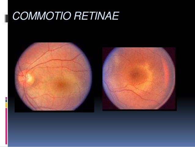 Blunt Ocular Trauma