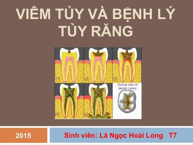 VIÊM TỦY VÀ BỆNH LÝ TỦY RĂNG Sinh viên: Lã Ngọc Hoài Long T72015