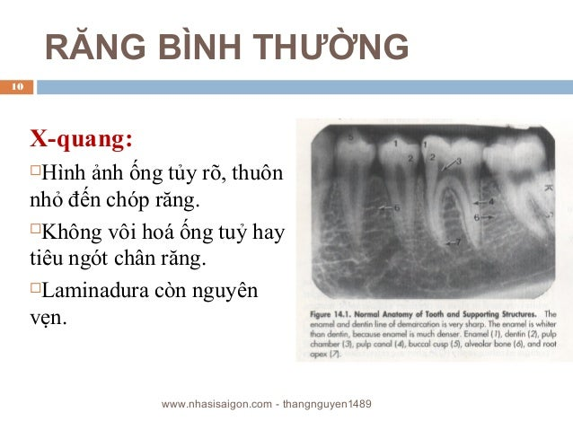 RĂNG BÌNH THƯỜNG X-quang: Hình ảnh ống tủy rõ, thuôn nhỏ đến chóp răng. Không vôi hoá ống tuỷ hay tiêu ngót chân răng. ...