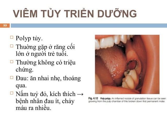 NỘI TIÊU  Không có triệu chứng, có thể có ánh hồng xuyên qua men (nặng).  Chỉ phát hiện trên phim X-quang.  X-quang: la...