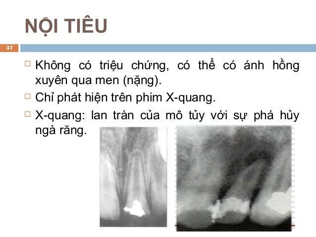 HOẠI TỬ TỦY ĐIỀU TRỊ: Điều trị nội nha: lấy tủy. TIẾN TRIỂN: Không điều trị → lan tràn qua lỗ chóp chân răng → bệnh ly m...