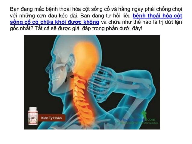 Bạn đang mắc bệnh thoái hóa cột sống cổ và hằng ngày phải chống chọi với những cơn đau kéo dài. Bạn đang tự hỏi liệu bệnh ...