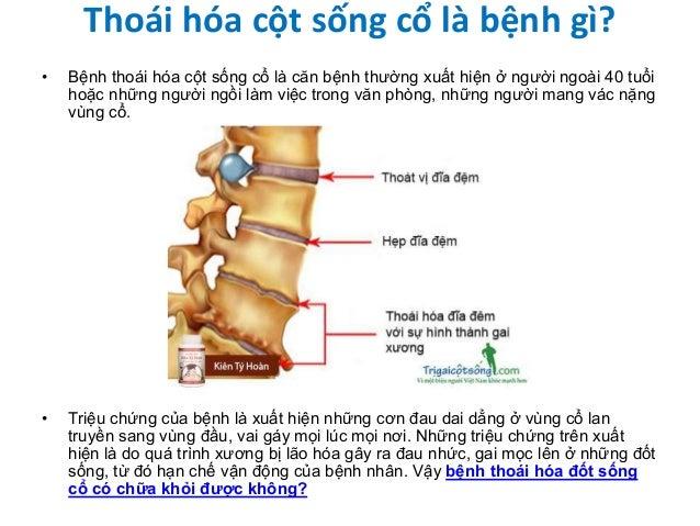 Thoái hóa cột sống cổ là bệnh gì? • Bệnh thoái hóa cột sống cổ là căn bệnh thường xuất hiện ở người ngoài 40 tuổi hoặc nhữ...