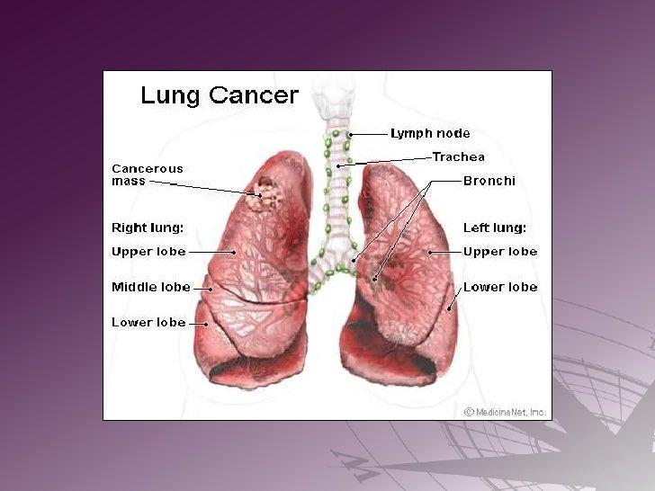 Lung Cancer Navigation