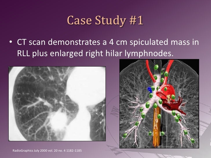 Case Study #1<br />CT scan demonstrates a 4 cm spiculated mass in RLL plus enlarged right hilar lymphnodes.<br />RadioGrap...