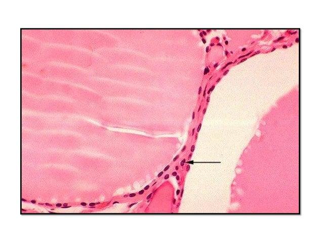 BOCIO ENDÉMICO Los bocios se producen con distribución endémica y esporádica. El bocio endémico se produce en zonas geográ...