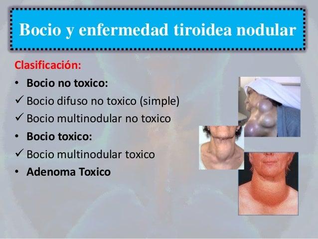 BOCIO MULTINODULAR TOXICO PDF