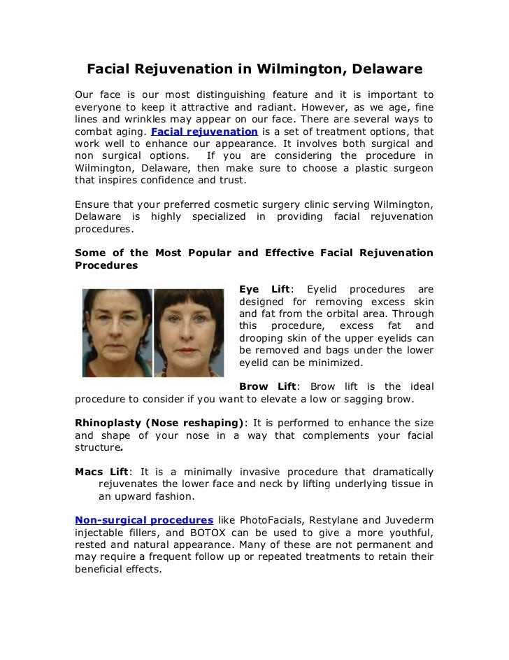Facial Rejuvenation in Wilmington, DelawareOur face is our most distinguishing feature and it is important toeveryone to k...