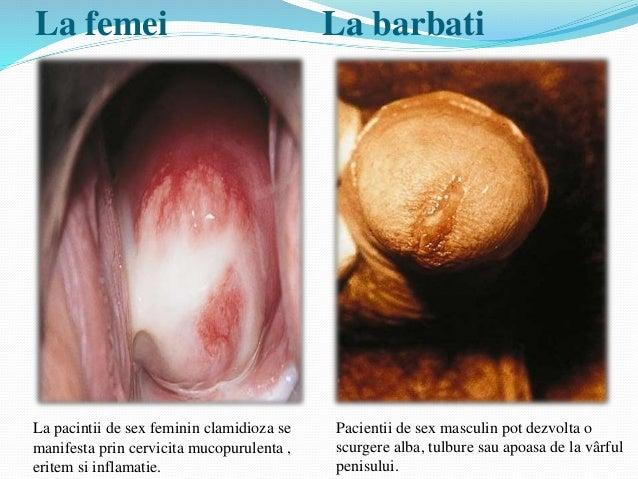 Ciuperca in zona genitala la femei tratament