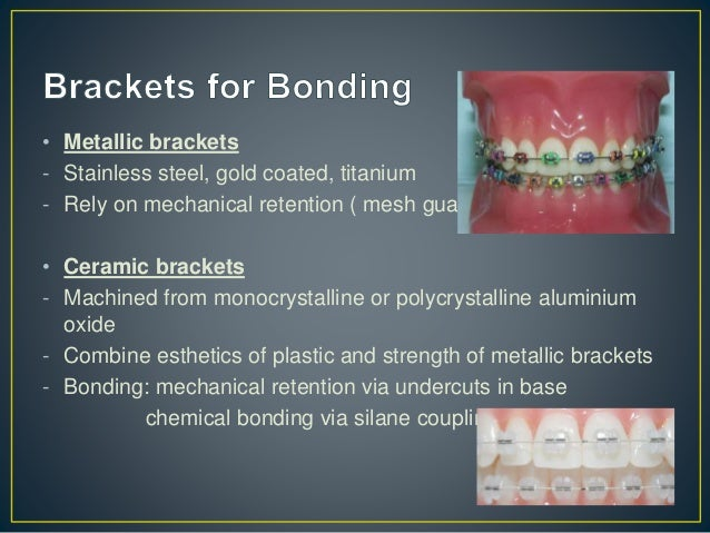 • Ceramic brackets Disadvantages - Greater friction resistance between wire and ceramic brackets (steel slots inserts are ...