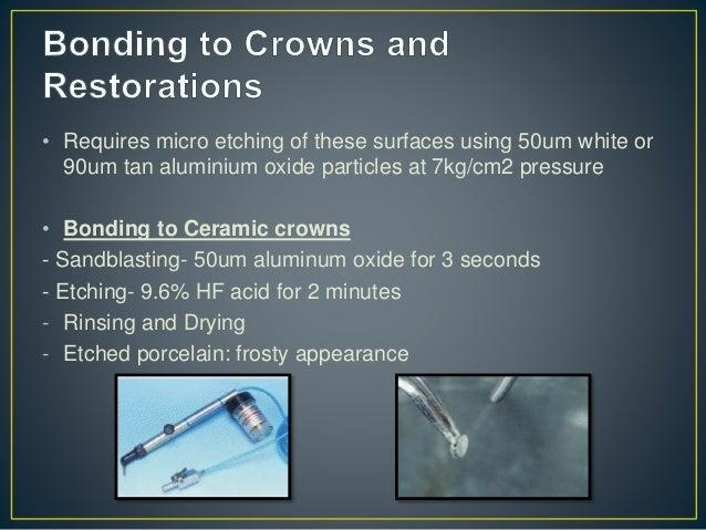 Bonding to Amalgam • Small amalgam restorations - Sanblasting: 50um aluminum oxide for 3 seconds - Conditioning enamel- 37...
